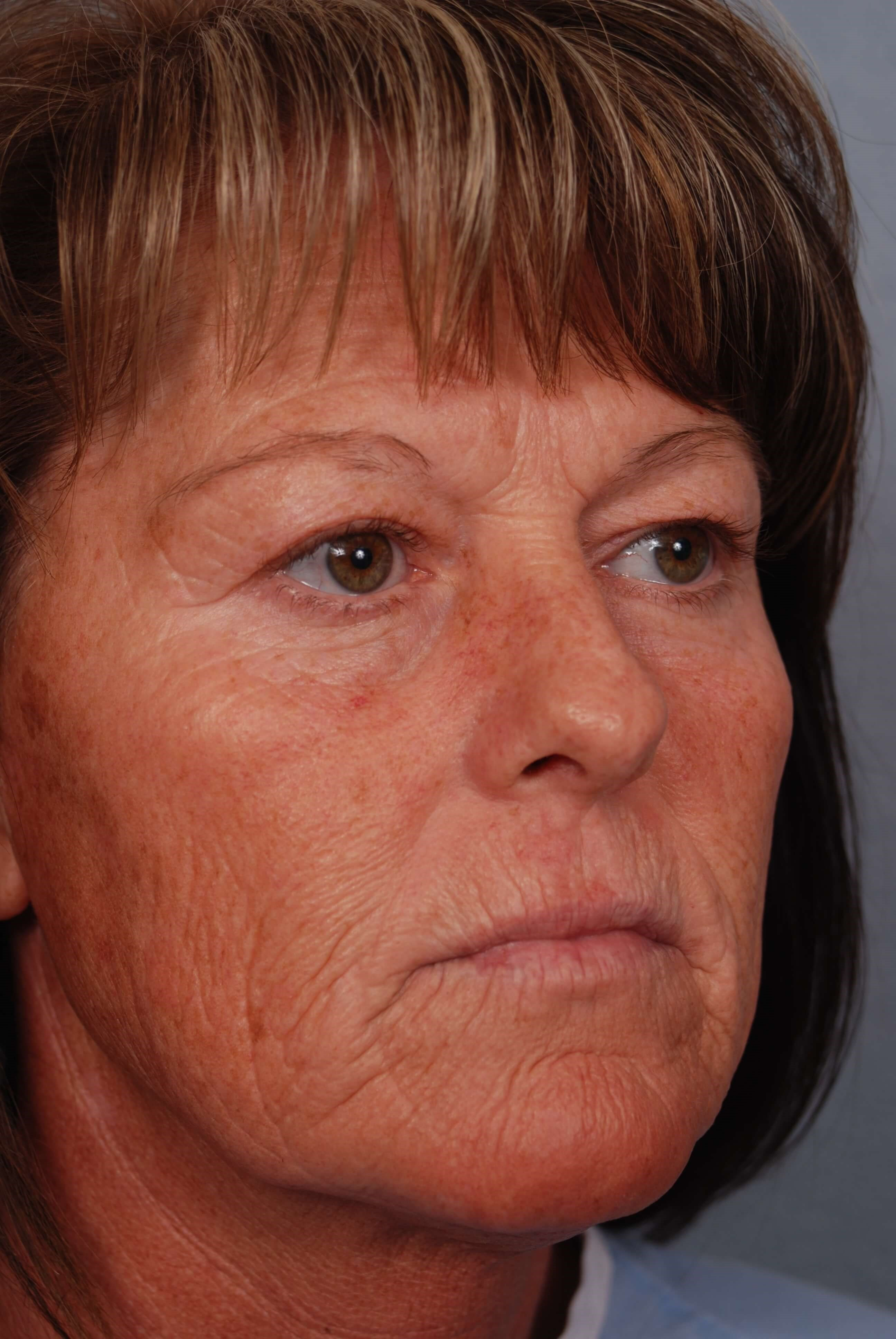 Face lift and Blepharoplasty Before