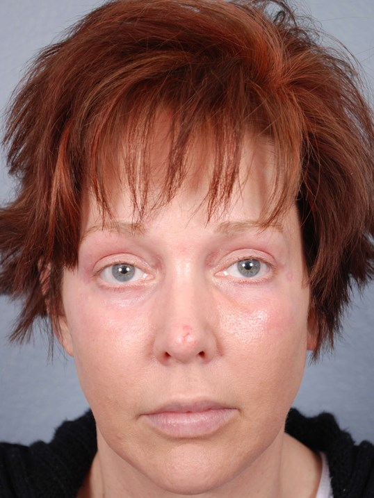 Blepharoplasty and Laser Skin After