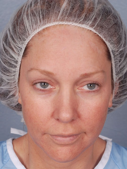 Blepharoplasty and Laser Skin Before