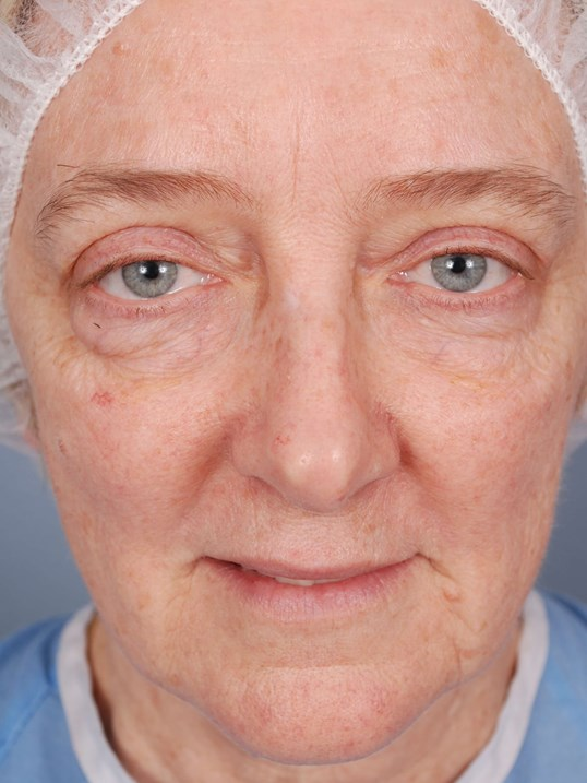 Lower Blepharoplasty Before