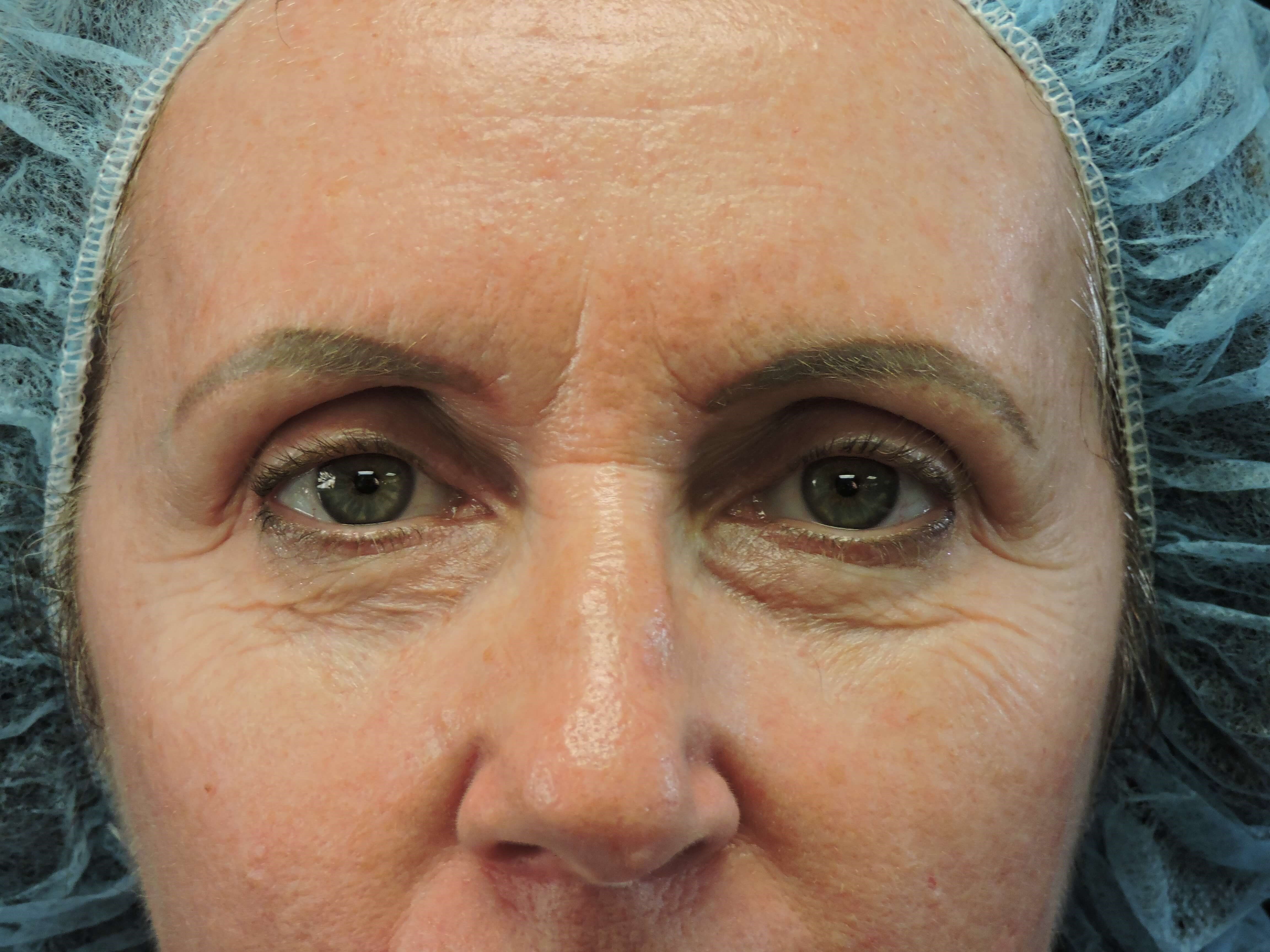 Browlift/Lower Blepharoplasty Before