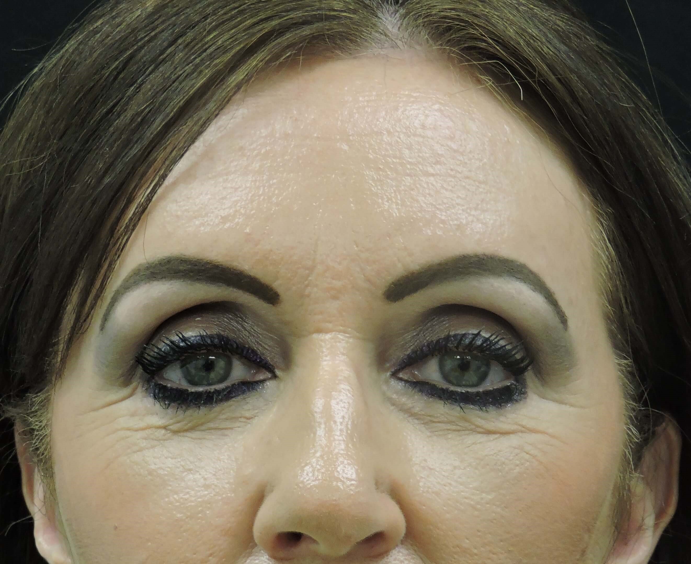 Browlift/Lower Blepharoplasty After