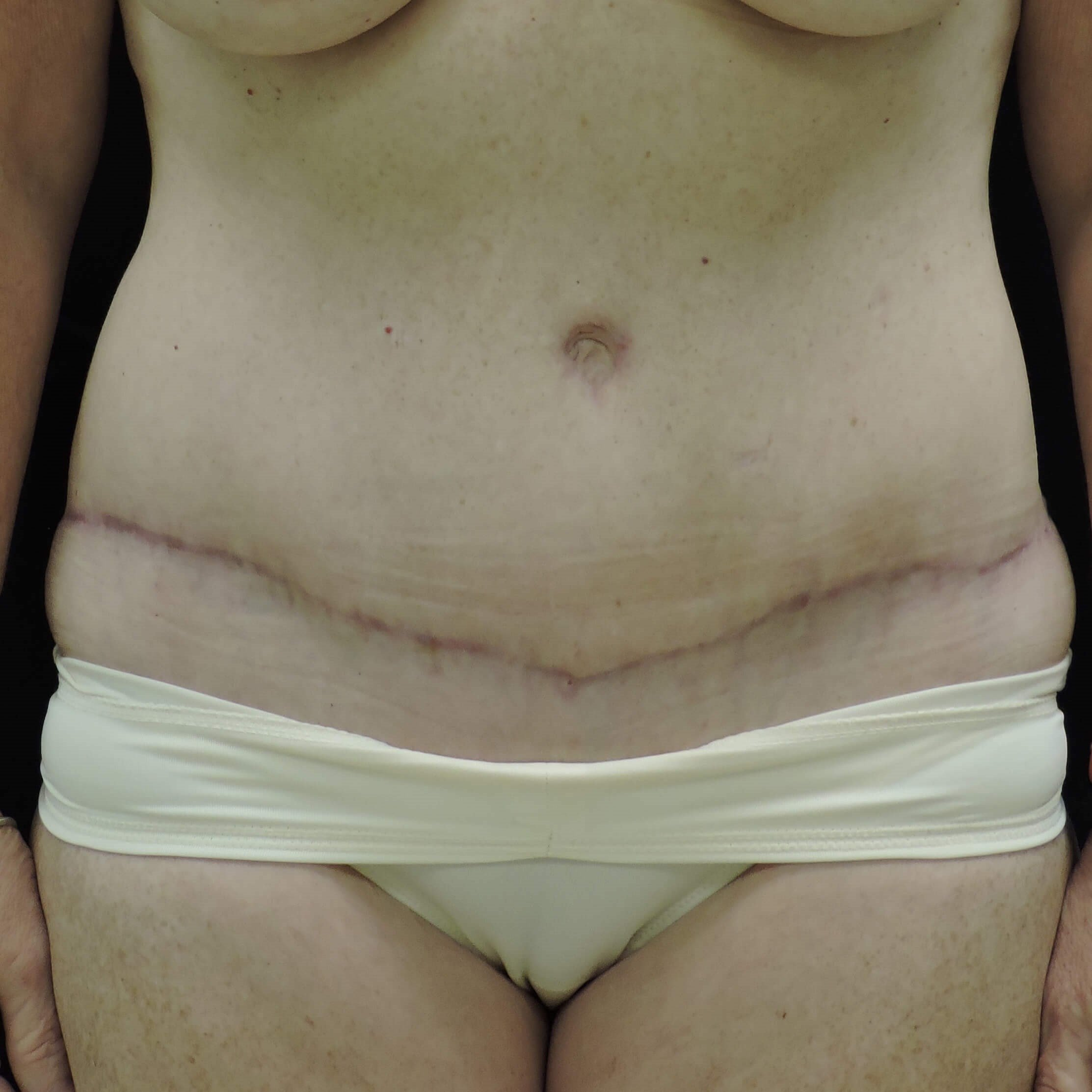 Tummy Tuck & Flank Liposuction After