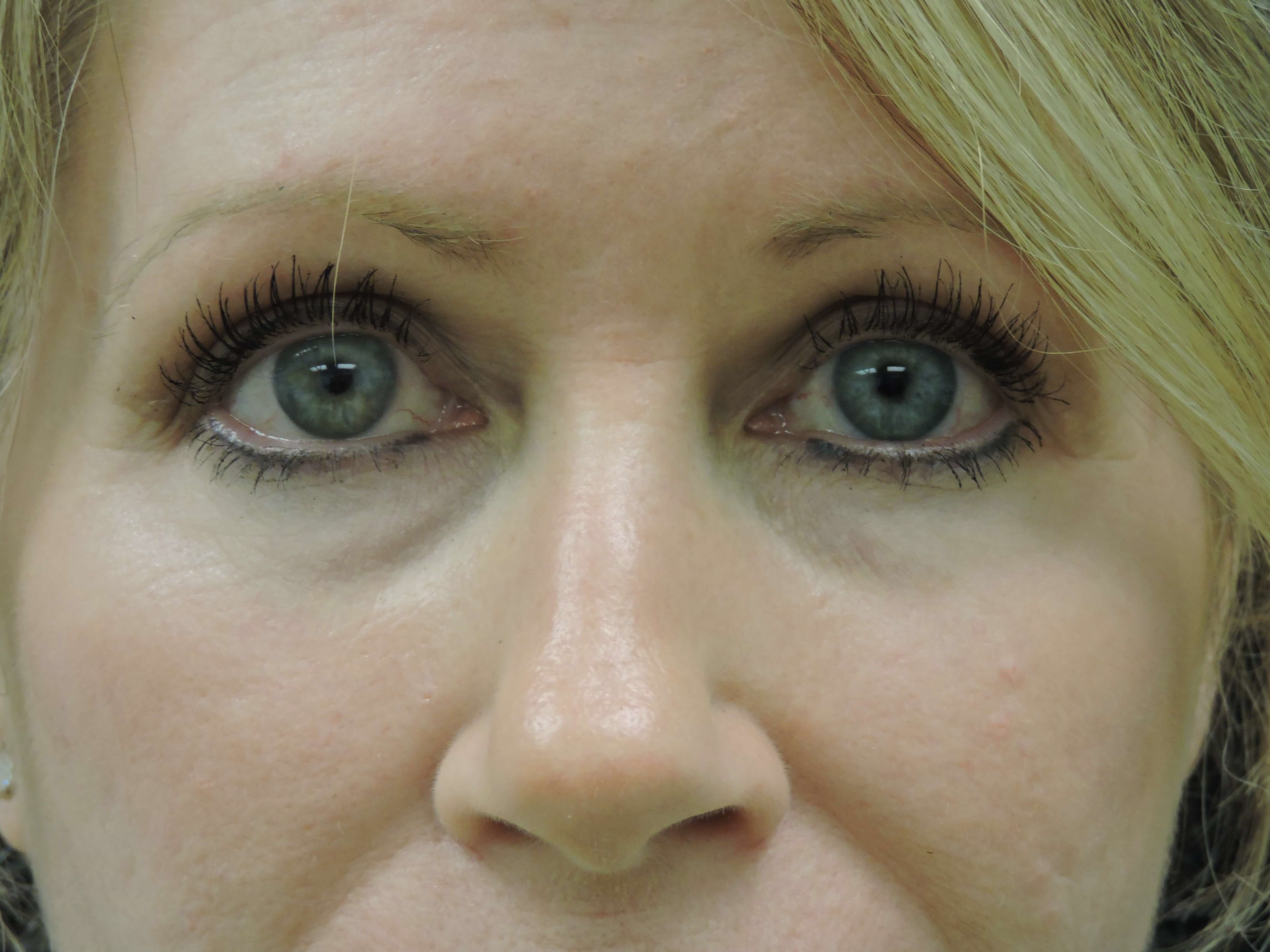 Upper Blepharoplasty After