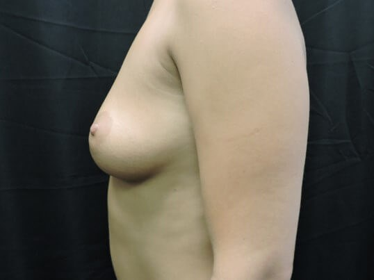 Breast Augmentation: Silicone Before