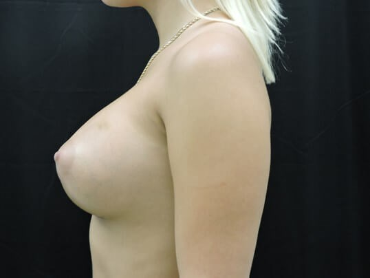 Breast Augmentation: Silicone After
