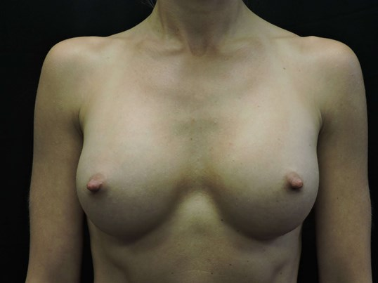 Breast Augmentation: Silicone After Breast Implants