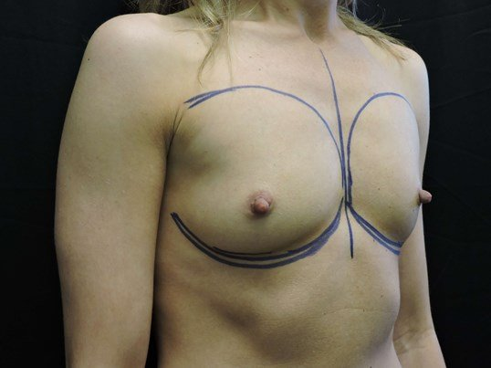 Breast Augmentation: Silicone Before Breast Implants