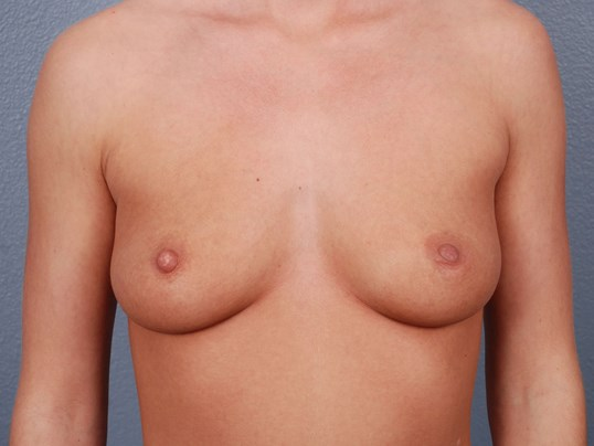 Front View - Breast Implants Before