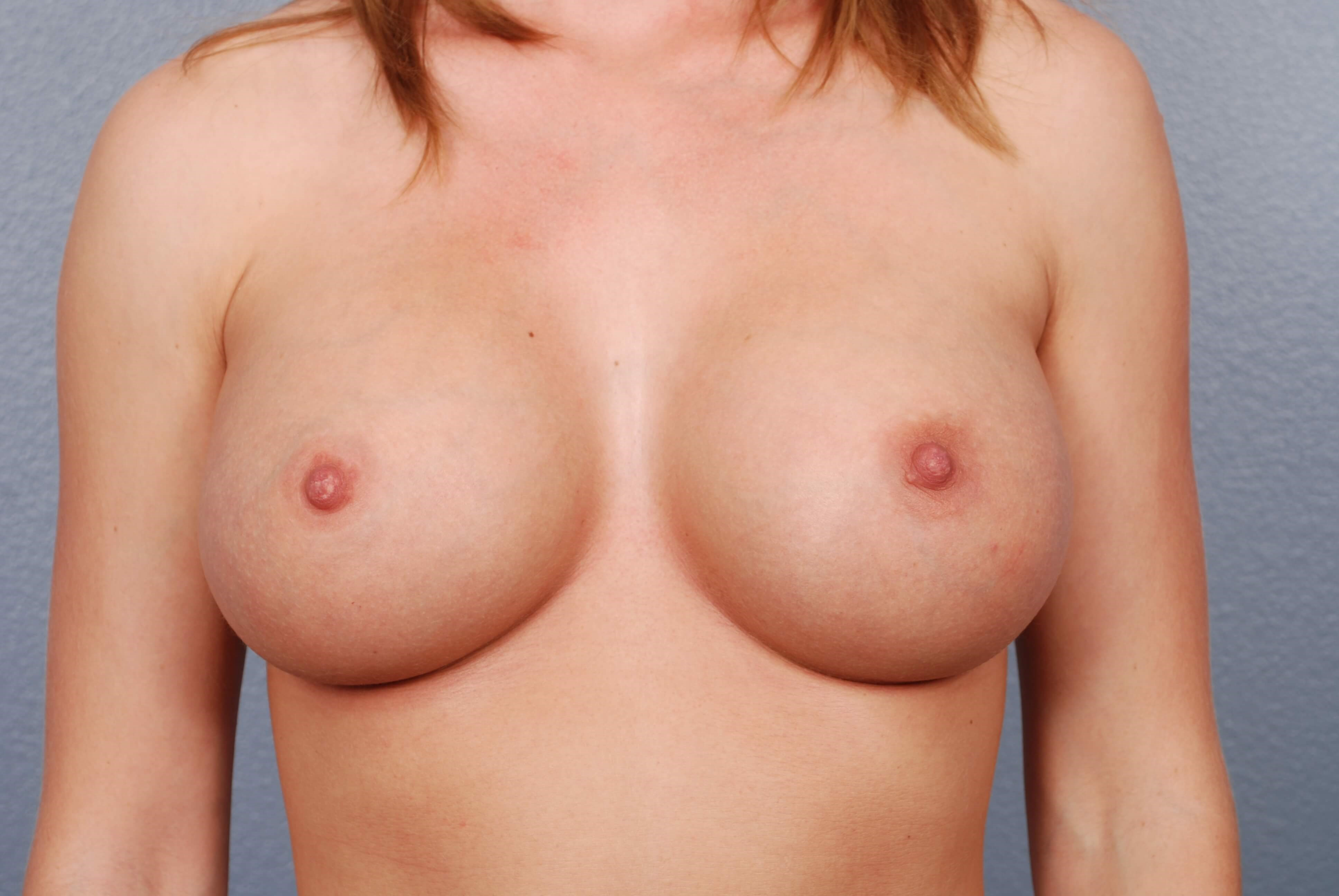 Front View - Breast Implants After Silicone Breast Implants
