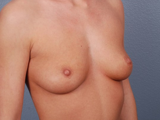 Oblique View - Breast Implants Before