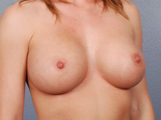 Oblique View - Breast Implants After Silicone Breast Implants