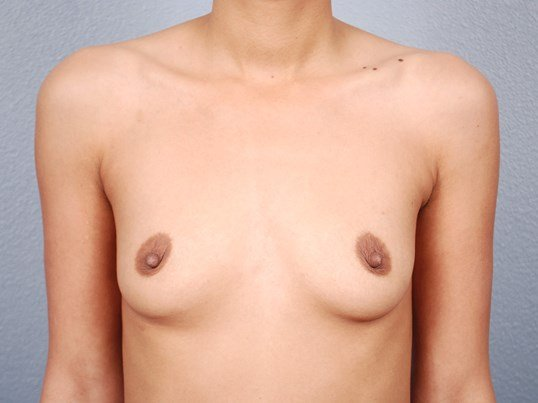 Front View Saline Breast Aug Before