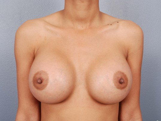Front View Saline Breast Aug After