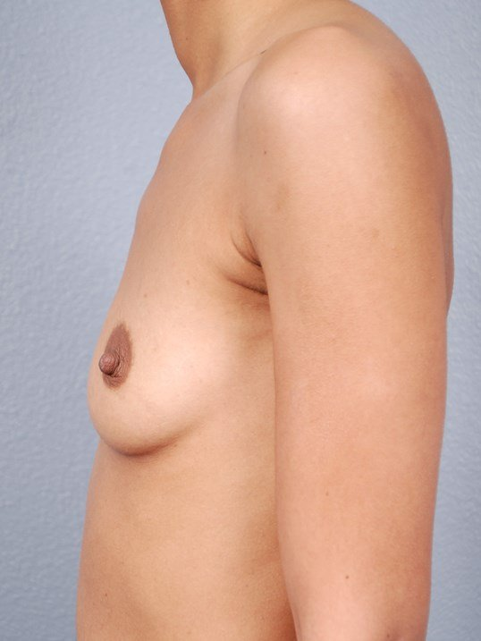 Side View Saline Implants Before
