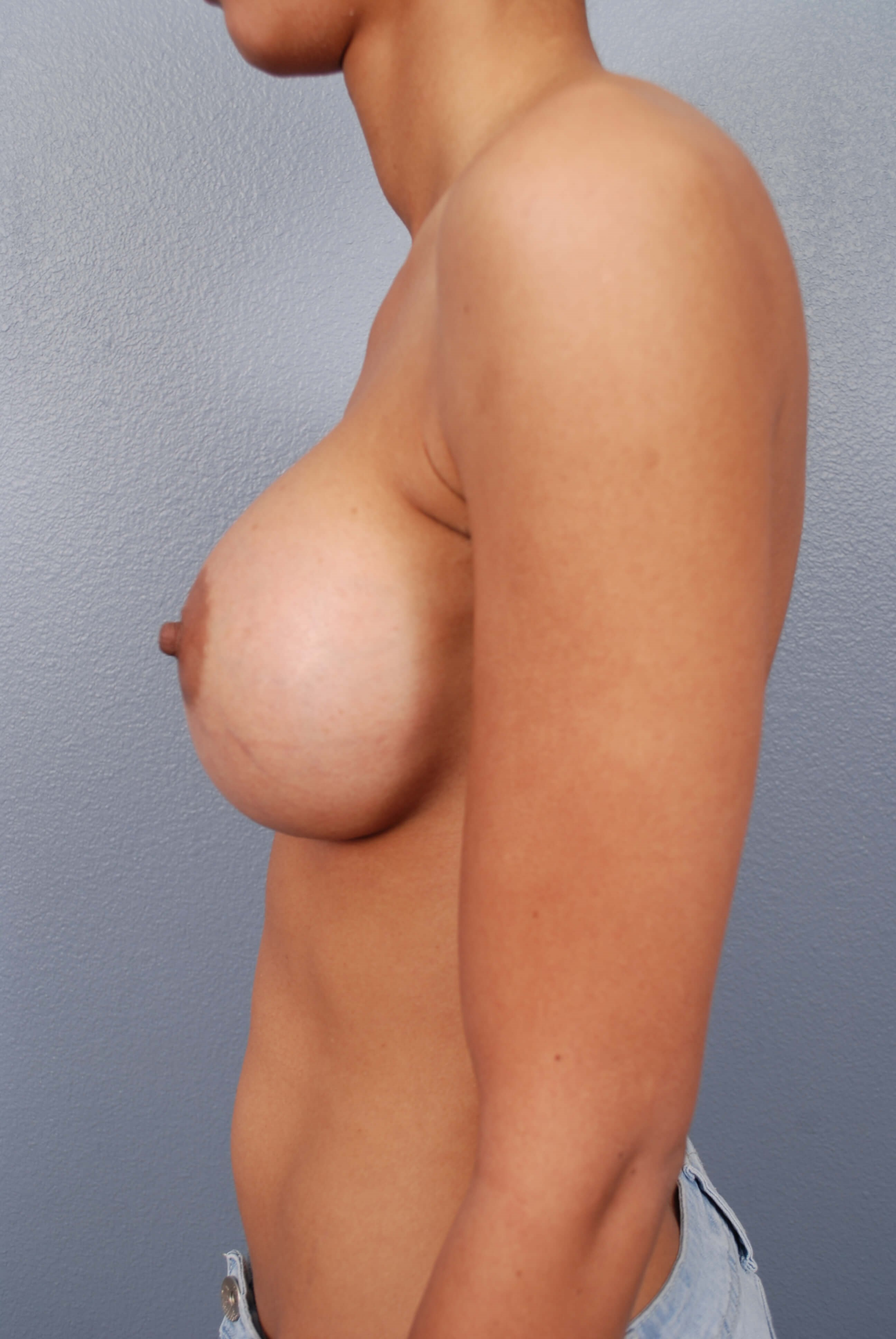 Side View Saline Implants After