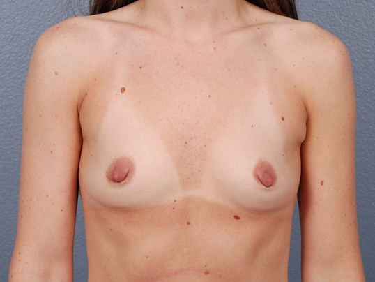 Silicone Breast Implants (Okc) Before Breast Implants