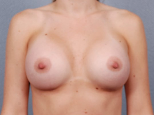 Silicone Breast Implants (Okc) After Breast Implants