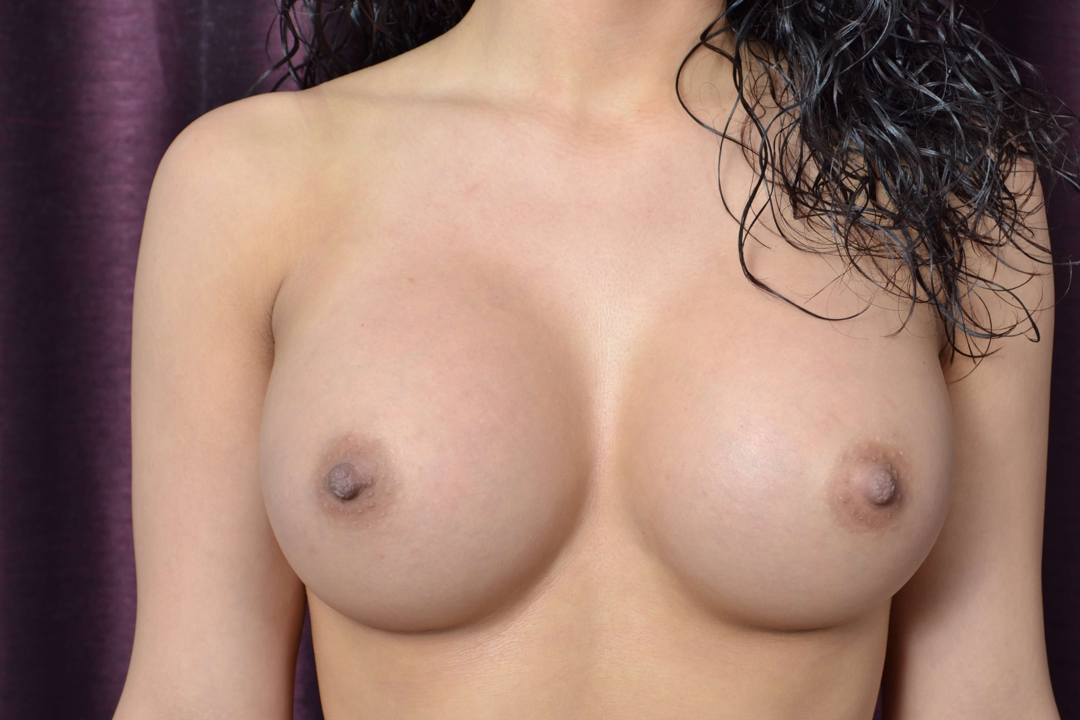 Breast Augmentation - Oklahoma After
