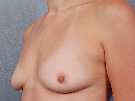 Silicone Breast Augmentation Before Breast Implants