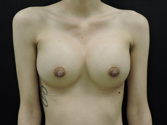 Saline Breast Augmentation After