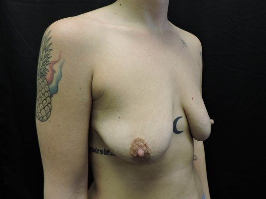 Breast Aug w/ Lift - OKC Before