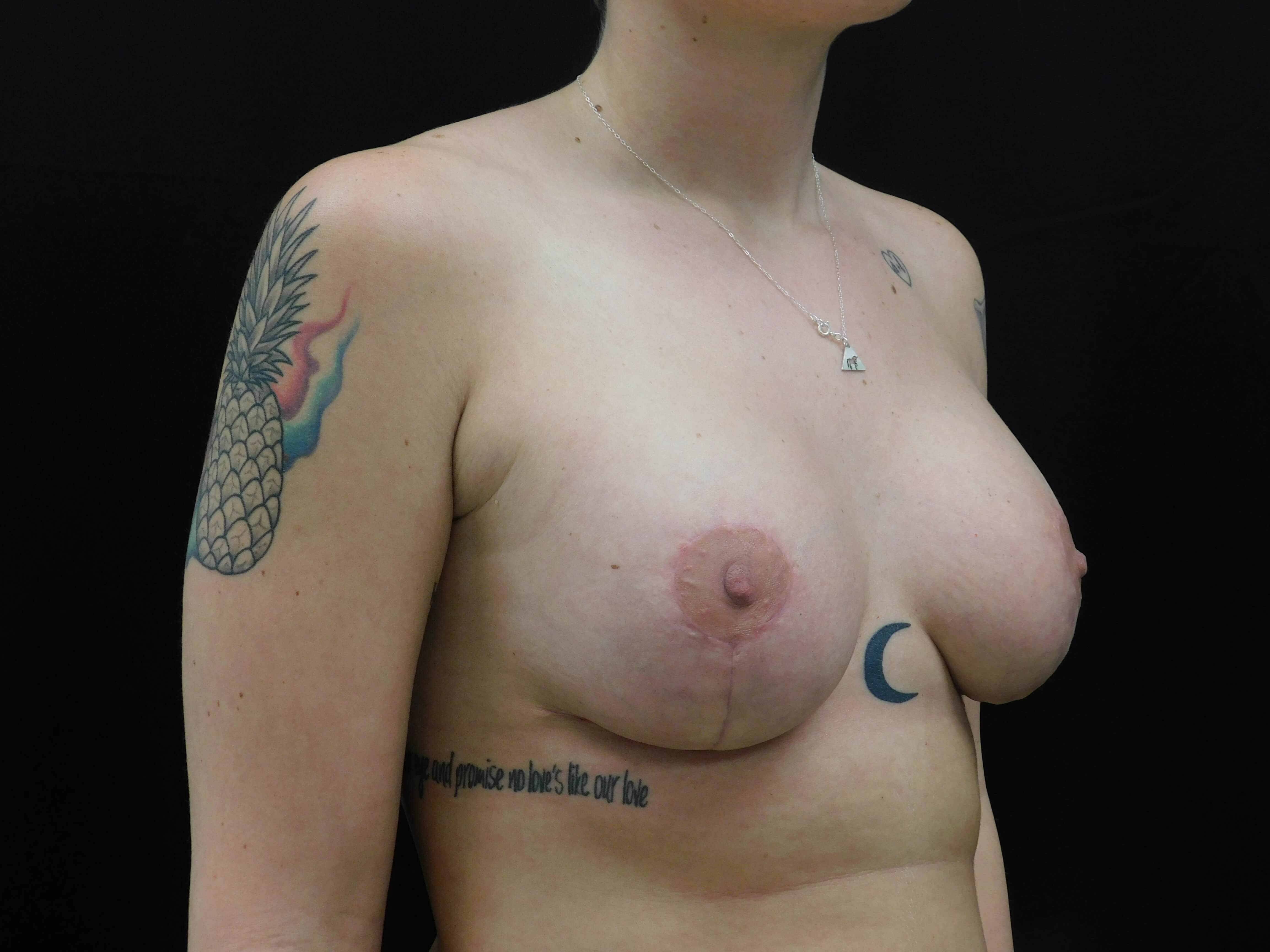 Breast Aug w/ Lift - OKC After
