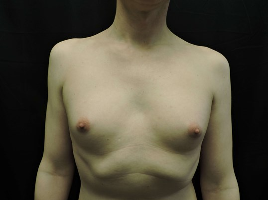 Male to Female Breast Aug Before