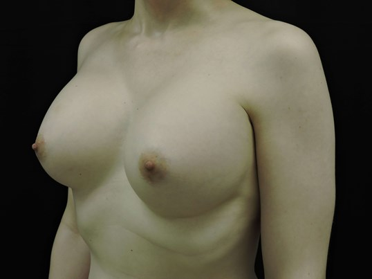 Male to Female Breast Aug After