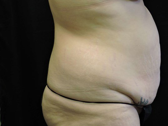 Tummy Tuck w/ Flank Lipo Before
