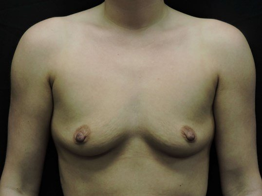 Silicone Breast Augmentation Before Implants