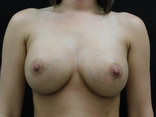 Silicone Breast Augmentation After 475cc Implants