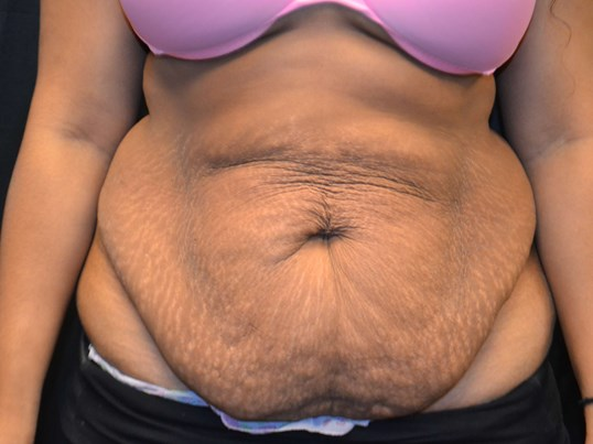 Maxi tummy tuck Before