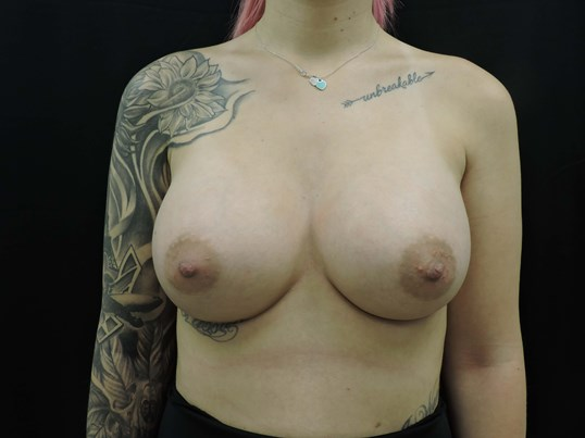 Silicone Breast Augmentation After w/ 560cc Implants