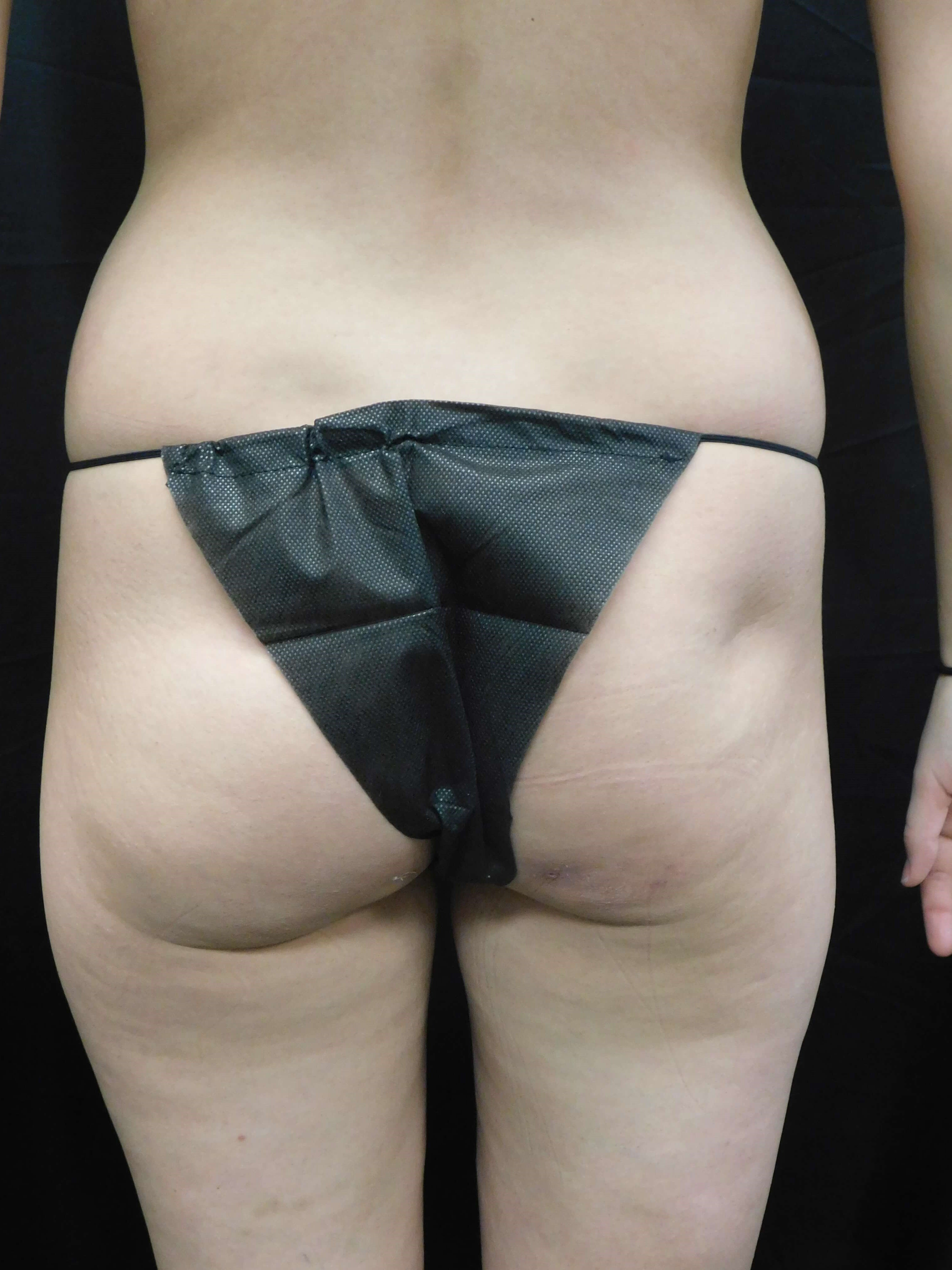 Brazilian Buttock Lift (BBL) Before