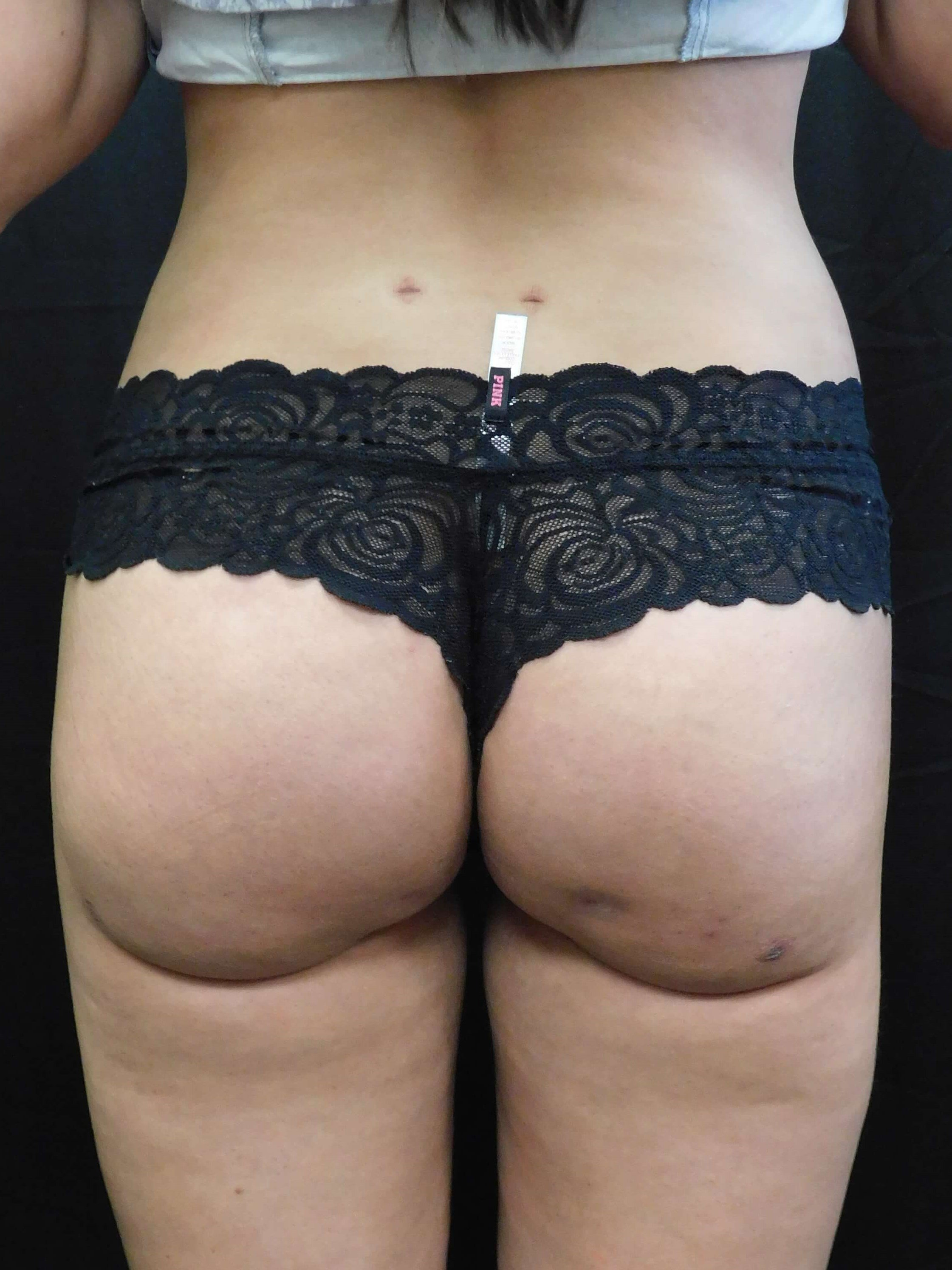 Brazilian Buttock Lift (BBL) After
