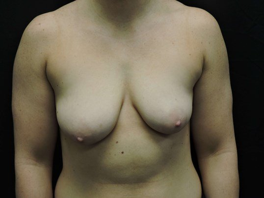 Silicone Breast Aug with Lift Before