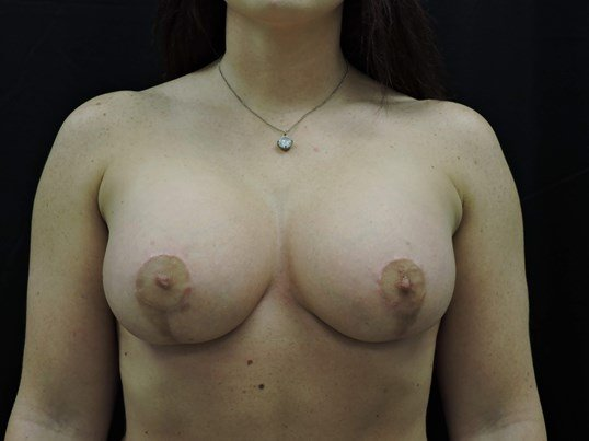 Silicone Breast Aug with Lift After