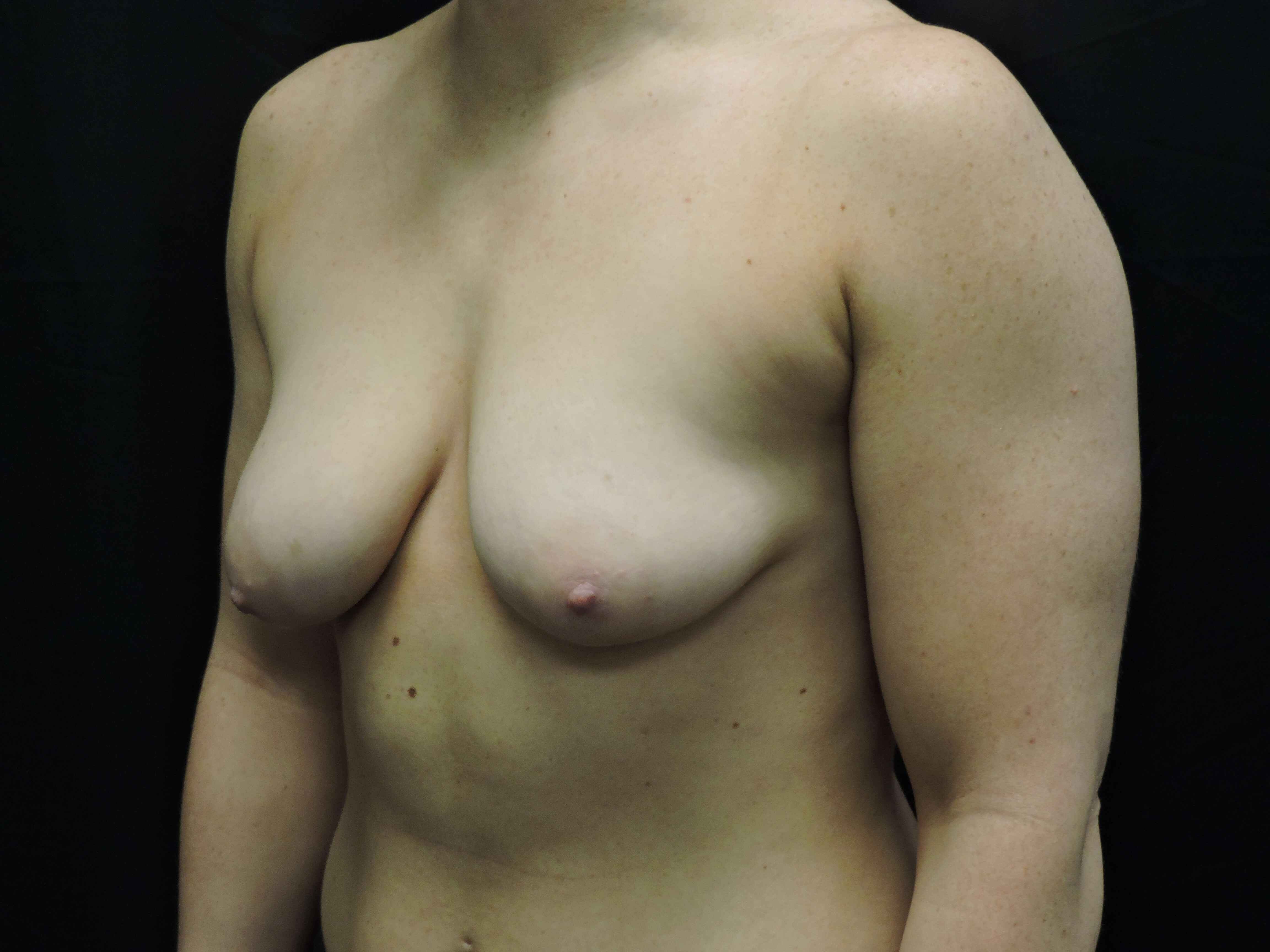 Silicone Breast Aug w/ Lift Before