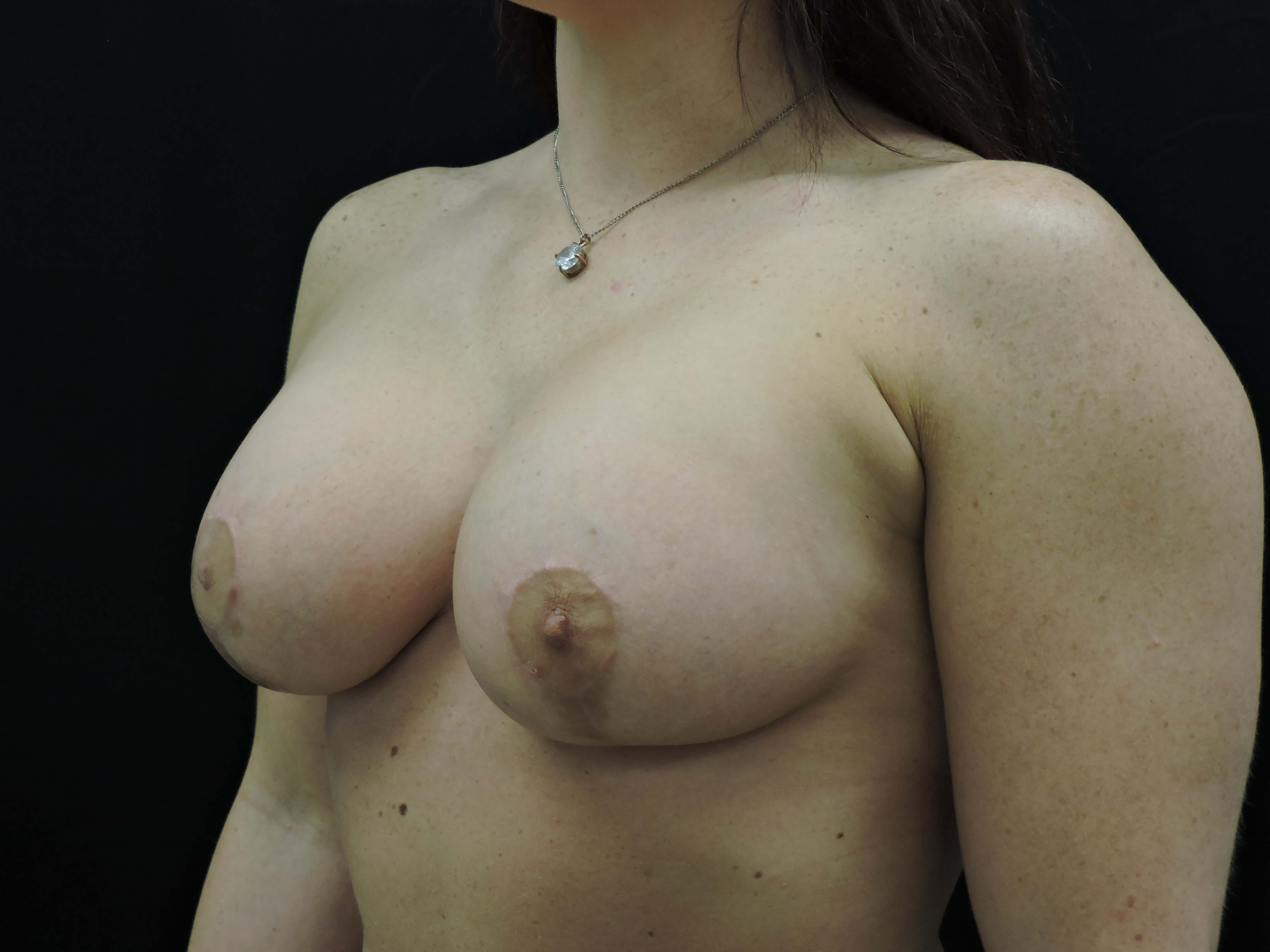Silicone Breast Aug w/ Lift After