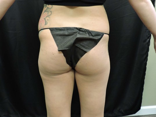 Buttock Implants w/ Fat Trans. Before