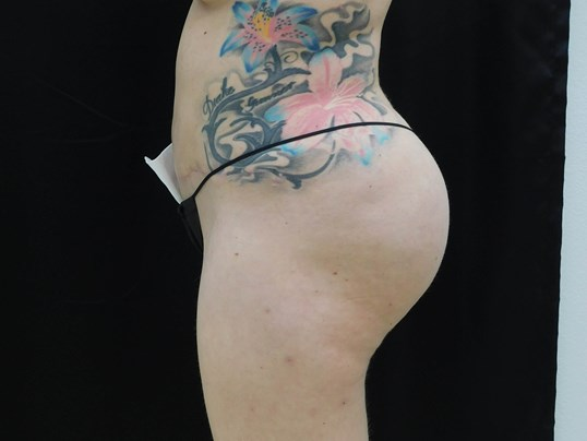 Buttock Implants, Fat Transfer After