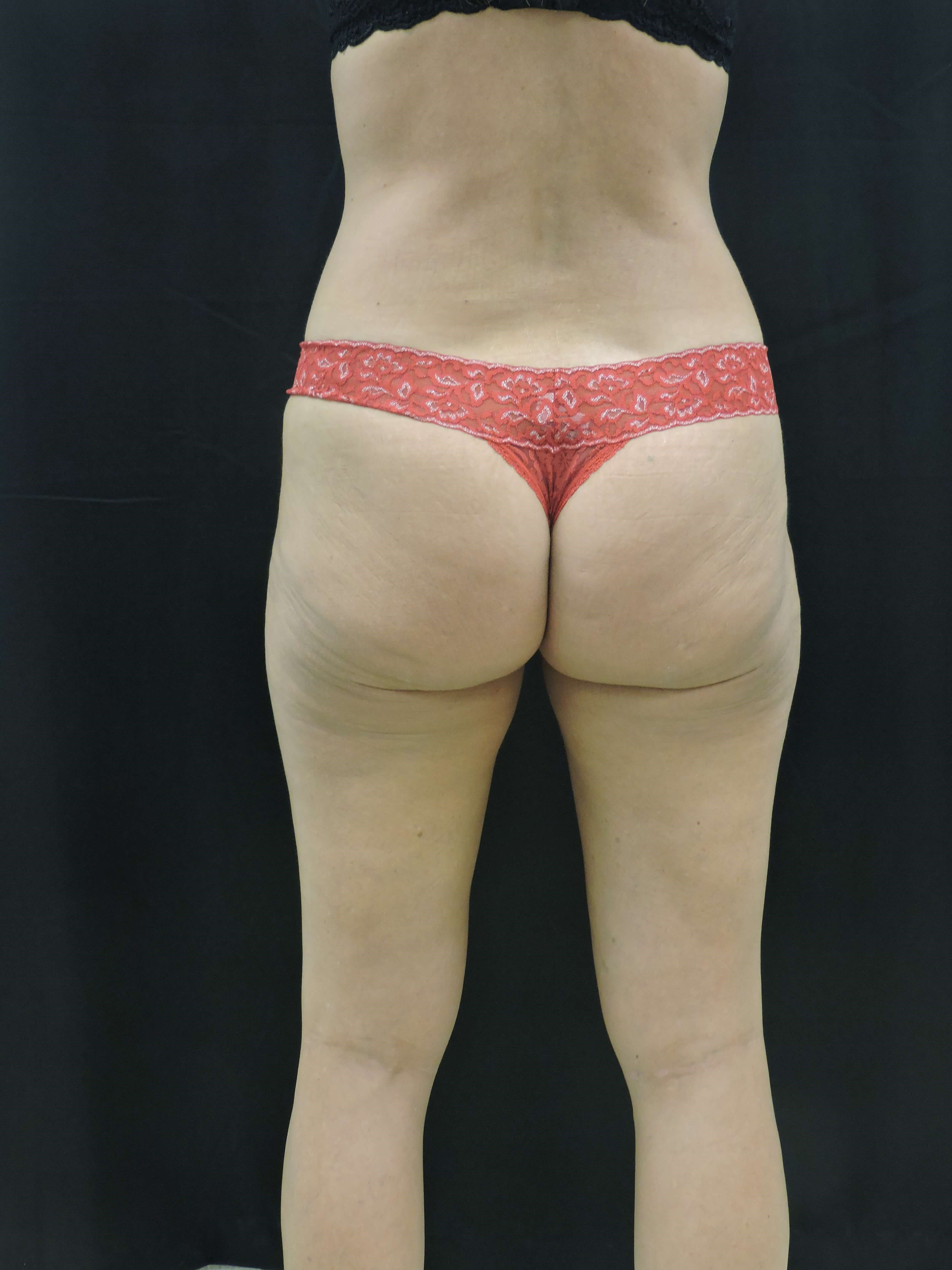 Thigh Liposuction After