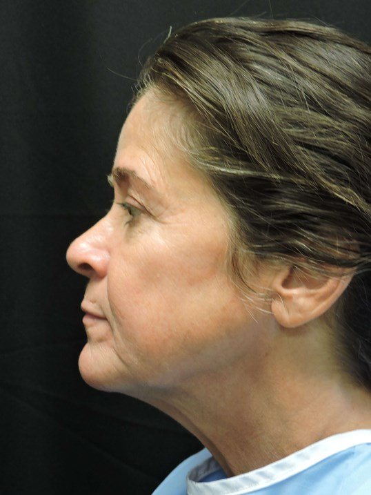 Face & Neck Lift, Fat Transfer Before