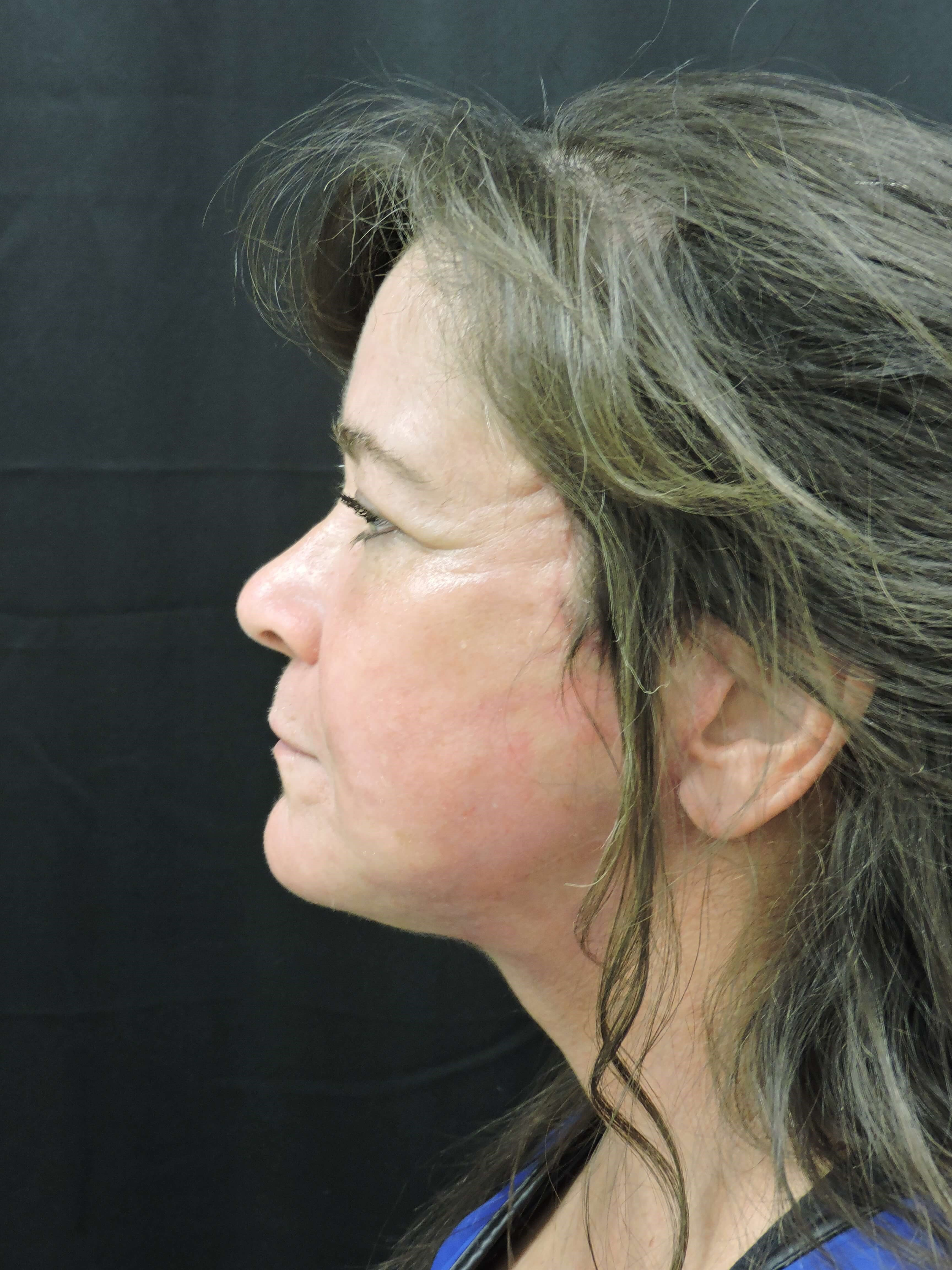 Face & Neck Lift, Fat Transfer After