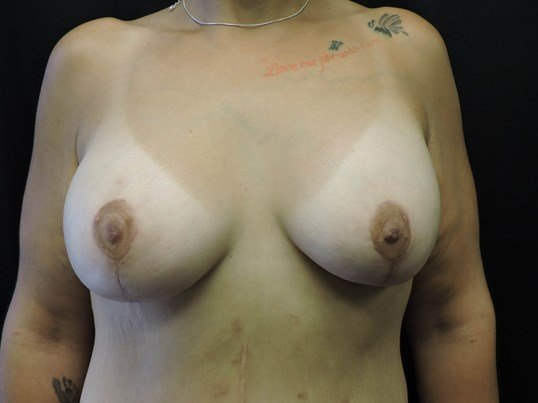 Breast Aug w/ Lift After