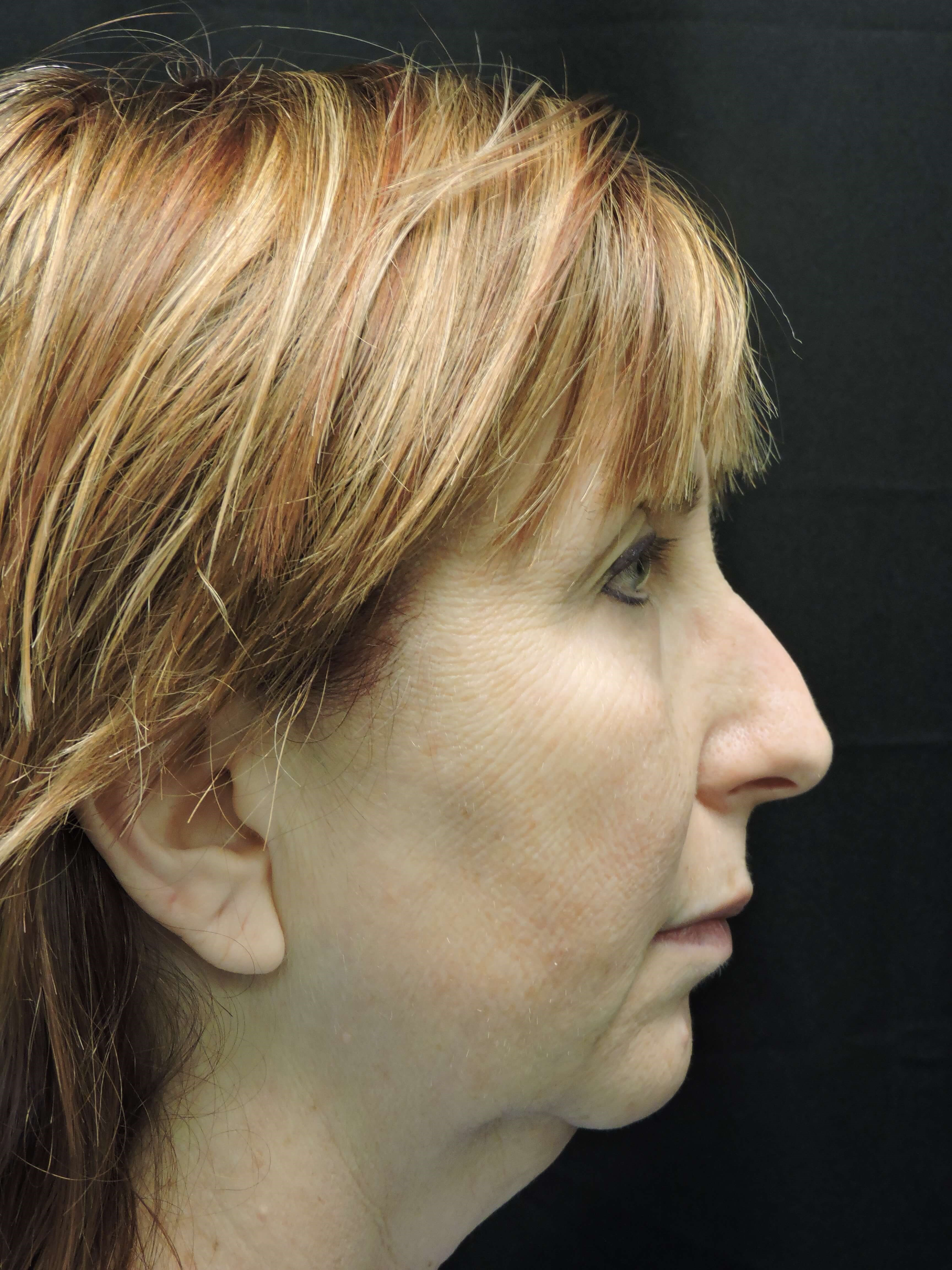 Smart Lift w/ Chin Implant Before