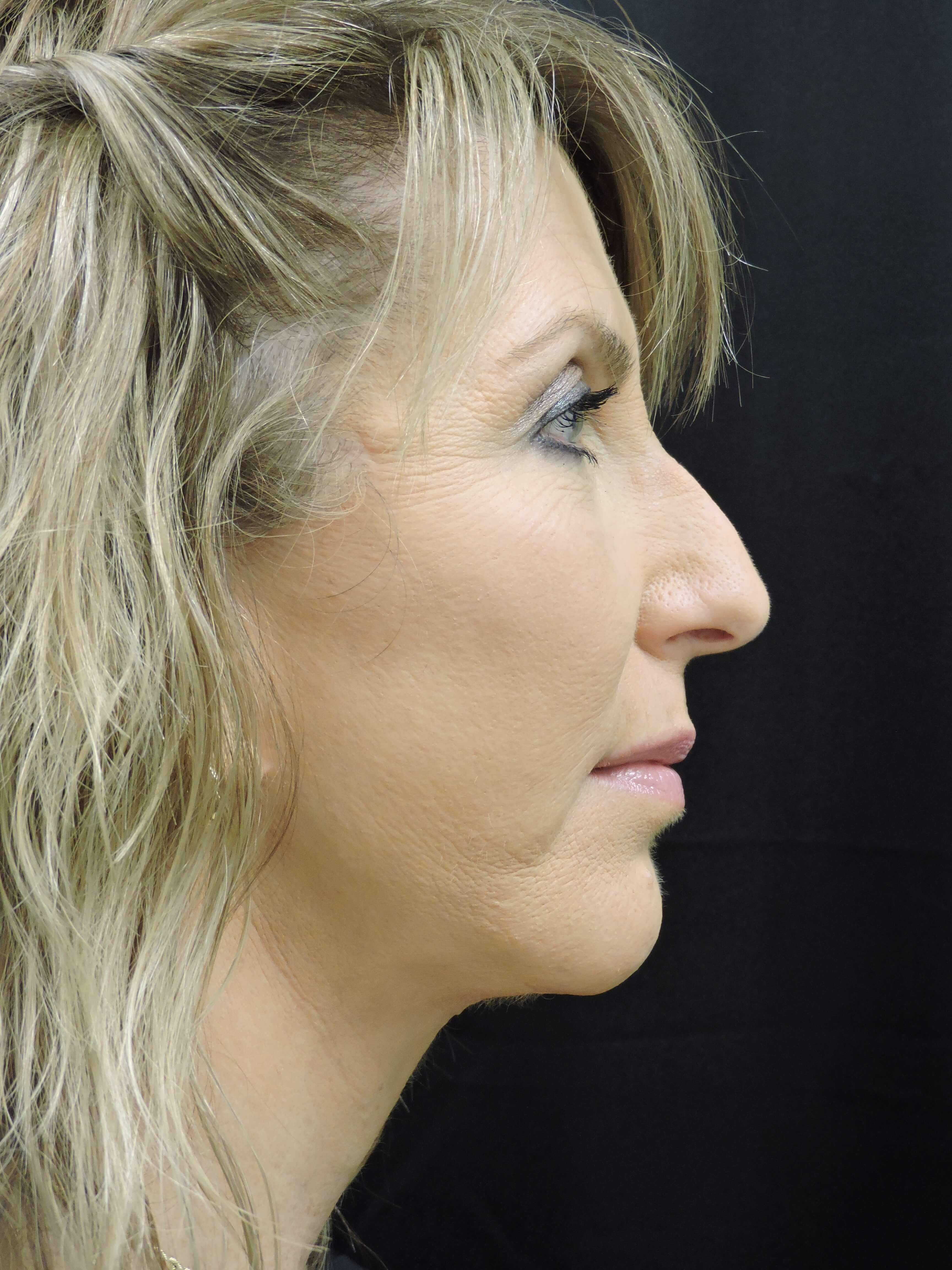 Smart Lift w/ Chin Implant After