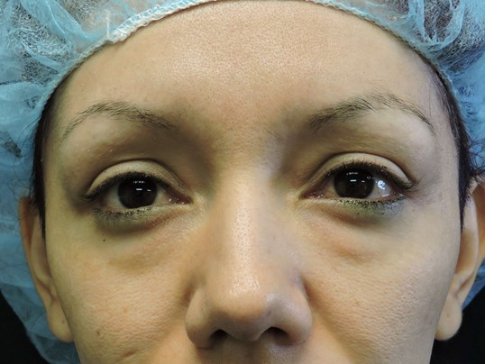 Lower Eyelid Before