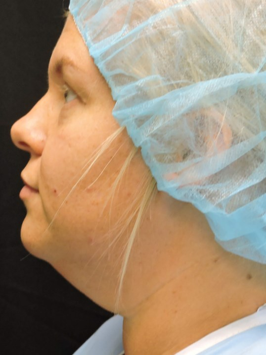 Isolated Neck Lift Before